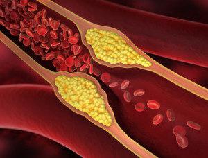 Ohne Befund - Zeichnung einer Arteriosklerose bzw. Gefäßverengung